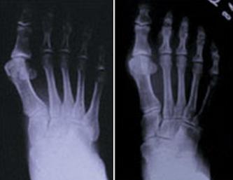 外反母趾の症状のある足